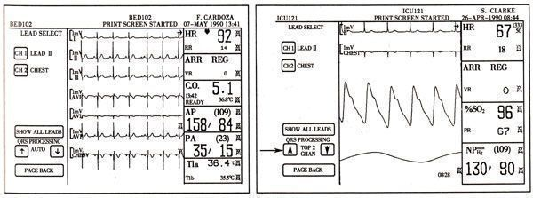 pd29916的校正电路图